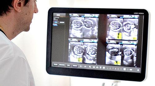 diagnosi prenatale ginecologia Salerno Landino